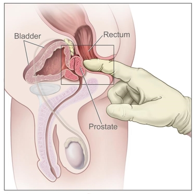 internal prostate massage